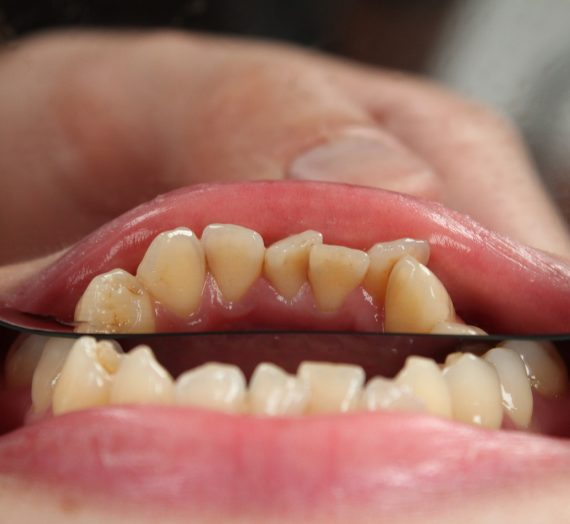 Different Types of Cosmetic Dentistry Procedures To Fit Your Style